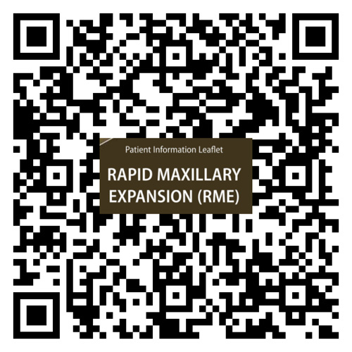 rapid maxillary expansion