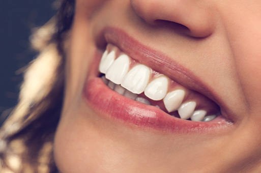 Creating your beautiful new smile